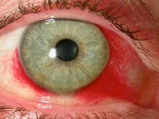 Oeil rouge & non douloureux